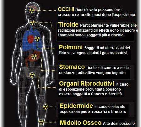 I danni biologici da sovraesposizione alle radiazioni ionizzanti